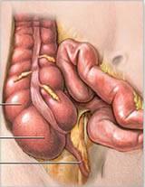 apendicite