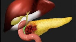 cancer-de-pancreas